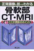 正常画像と並べてわかる骨軟部CT・MRI / ここが読影のポイント